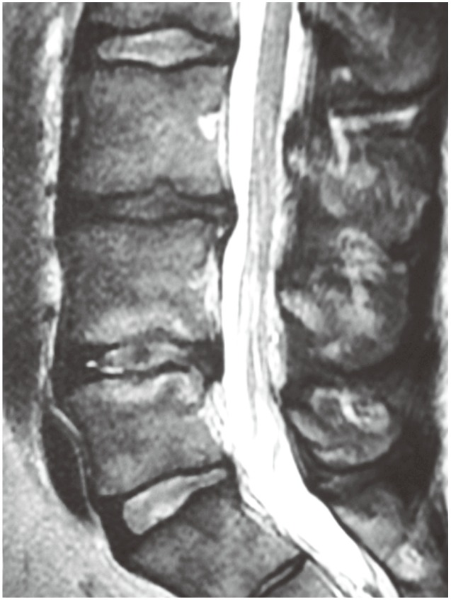 Operative Management of Lumbar Degenerative Disc Disease