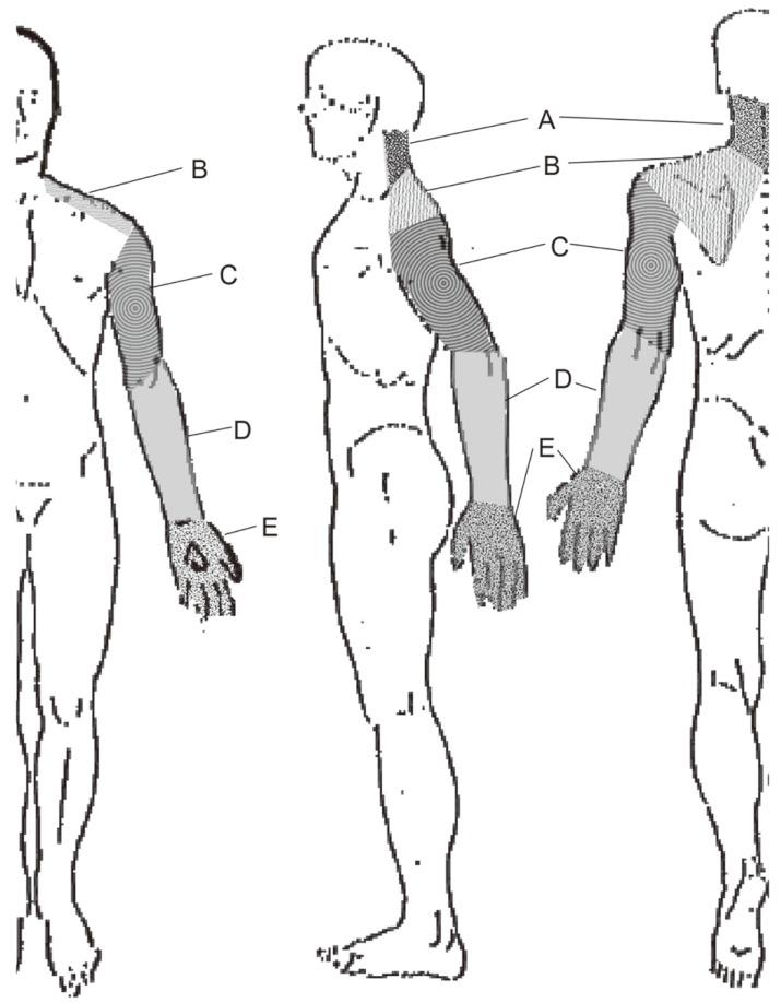 Localizing Value Of Pain Distribution Patterns In Cervical Spondylosis
